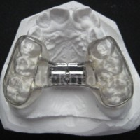 Bonded Rapid Maxillary Expansion Appliance is similar to a R.M.E although has a  framework encircling all of the posterior teeth and 