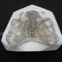 Midline Expansion Appliance with Z springs is a device used to widen the maxillary arch while also rotating the central incisors