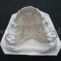 Acrylic Space Maintainers is used to maintain tooth positions during patient treatment.